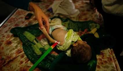 Babies starve as Mosul war grinds on