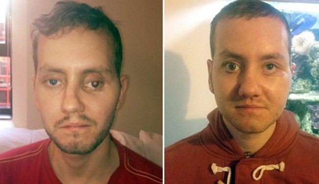 Build me a face in 3D: British man's life 'transformed'
