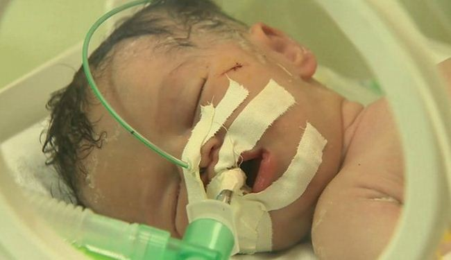 Gaza baby delivered after mother killed in Israeli airstrike